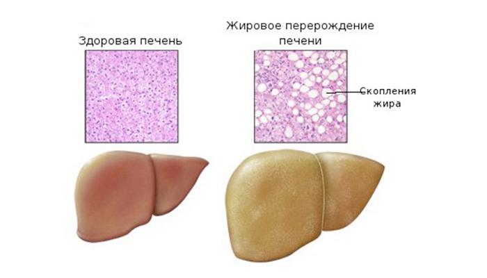 alcohol psoriasis liver