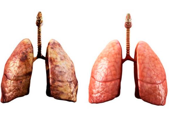 Сравнение легких курильщика и здорового человека