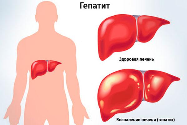 """Гепатит, в следствии длительного употребления """"Белого Китайца"""""""