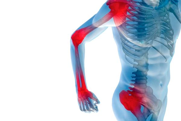 Боли в суставах - один из симптомов абстинентного синдрома употребления Метадона