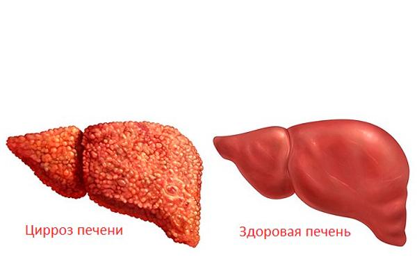 Цирроз печени - возможное последствие постоянного употребления Метадона