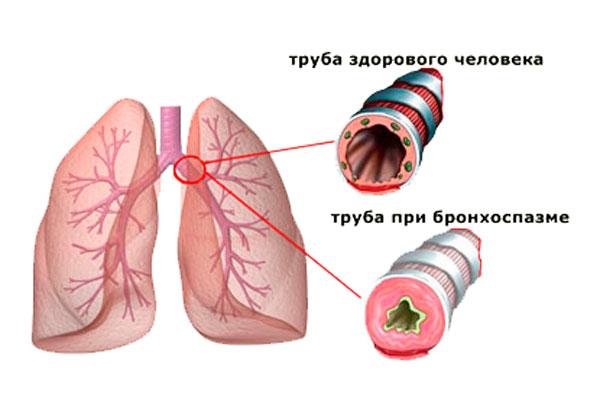 Одним из побочных действий длительного приема морфина может быть спазм дыхательной системы