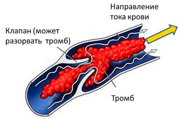 Тромбоз при применении первитина