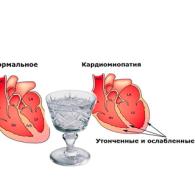 Алкогольная кардиомиопатия: симптоматика и основные методы лечения