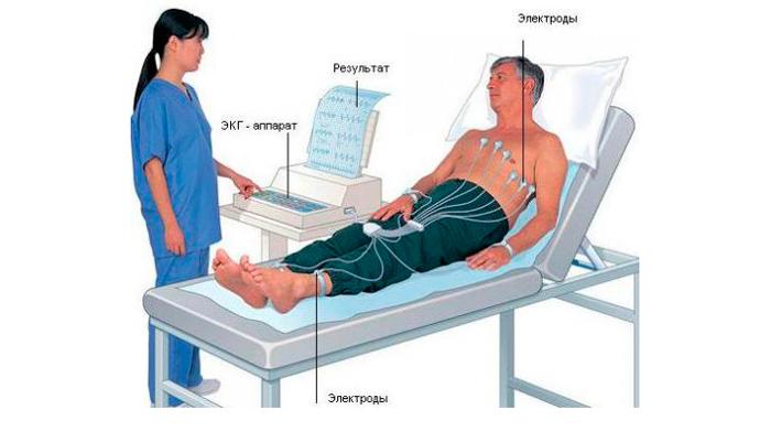 ЭКГ для диагностирования алкогольной кардиомиопатии