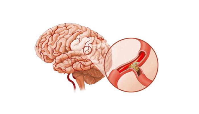 Атеросклероз сосудов головного мозга, как один из факторов появления эпилепсии