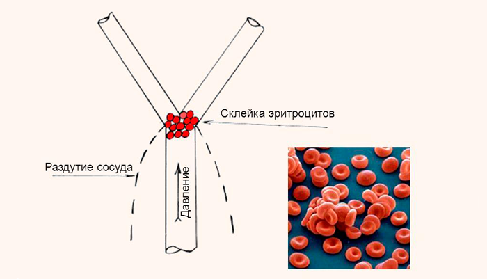 Возможное образование тромбов из-за повреждения эритроцитов