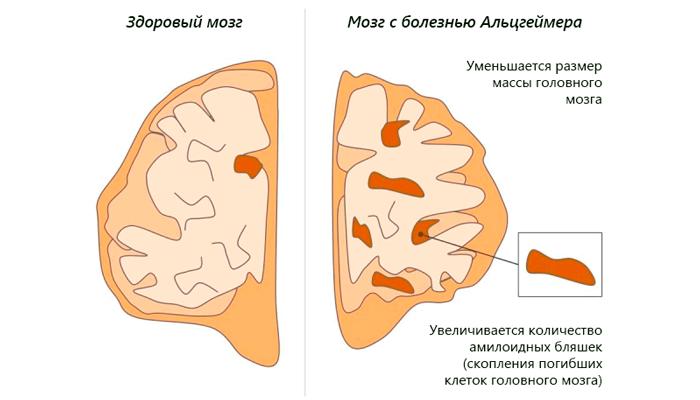 Различие здорового мозга и подверженного болезни Альцгеймера