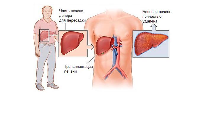 Операция по пересадке печени
