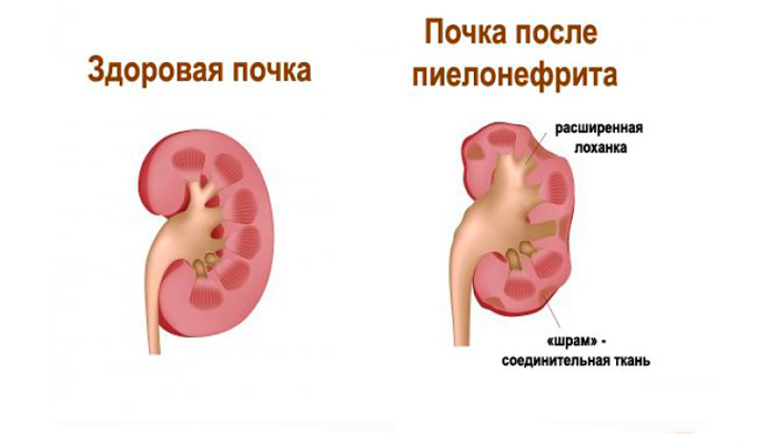 Частое мочеиспускание при пиелонефрите