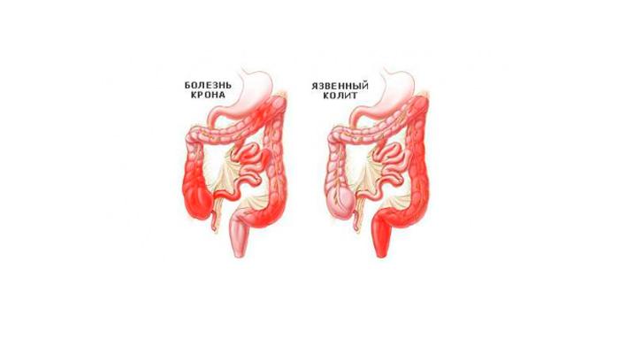 Воспаление кишечника, как одна из причин рвоты с кровью