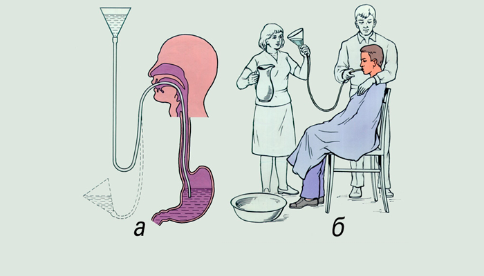 Процедура скорого промывания желудка
