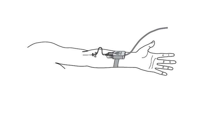 Схема проведения процедуры ВЛОК