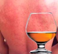 Аллергия на алкоголь: симптомы и лечение