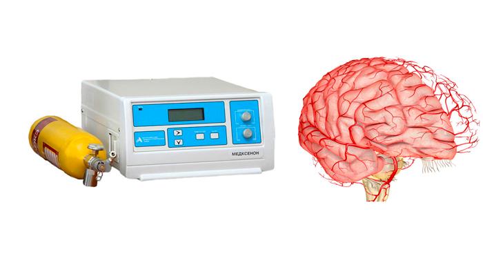 Улучшение кровоснабжения головного мозга после процедуры ксенонотерапии