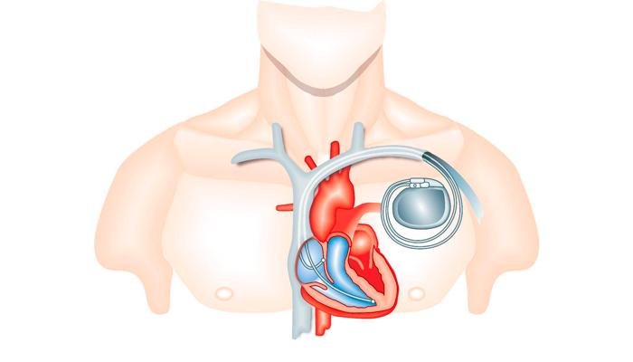 Запрет на проведения ТЭС-терапии при наличии кардиостимулятора в сердце человека