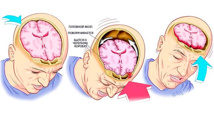 Появление алкогольного психоза в следствии сотрясения головного мозга