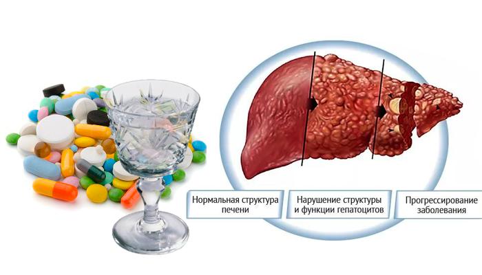 Развитие хронического гепатита в следствии совместного употребления антибиотиков и алкоголя
