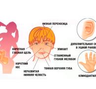 Фетальный алкогольный синдром у детей – страшные последствия алкоголизма родителей