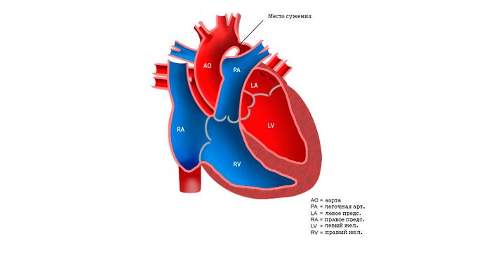 Коарктация аорты при фетальном алкогольном синдроме