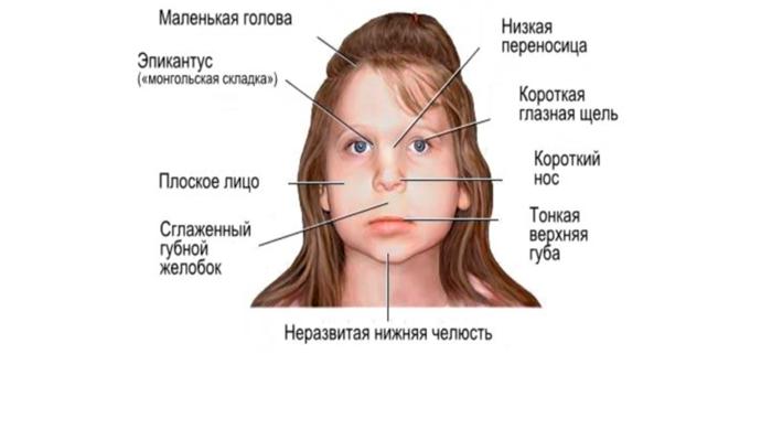 Фетальный алкогольный синдром у детей
