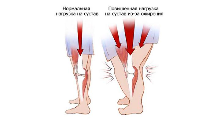Повышенная нагрузка на суставы из-за избыточного веса человека