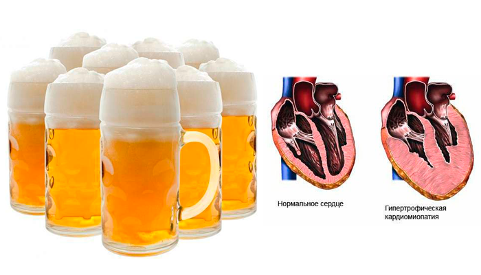 Вредное воздействие пива на сердце