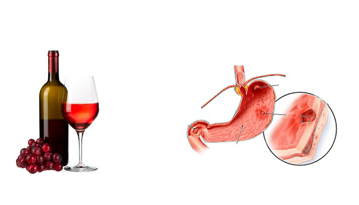 Разрешенное натуральное красное вино при гастрите