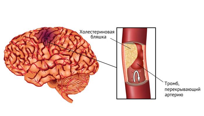 Образование тромба в сосуде головного мозга в следствии длительного курения