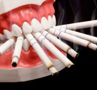 Как курение влияет на зубы - от чего действительно появляется желтизна?