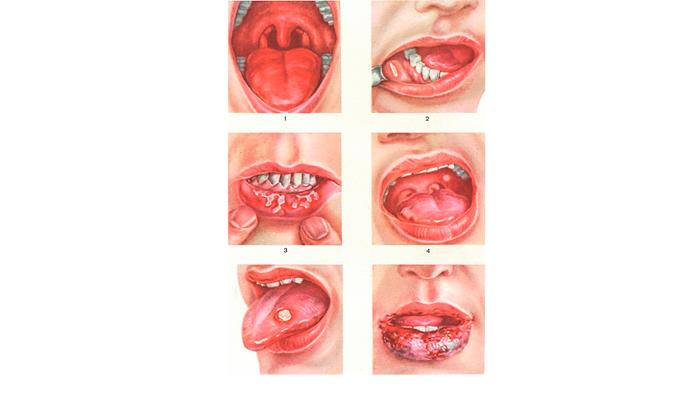 Рак губы в результате табачной зависимости