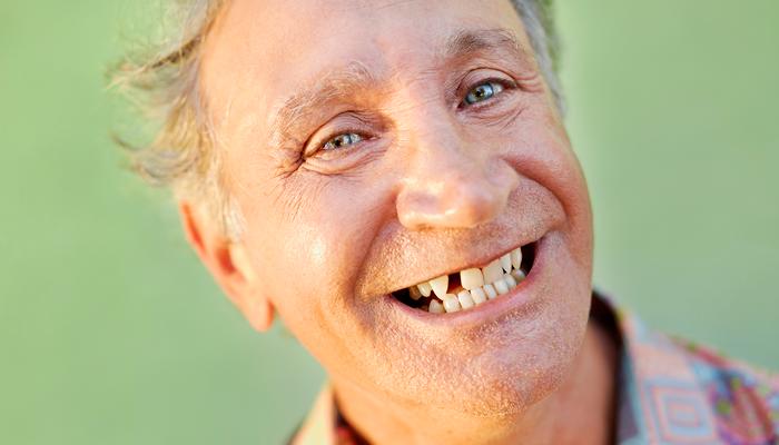 Выпадение зубов из-за никотиновой зависимости