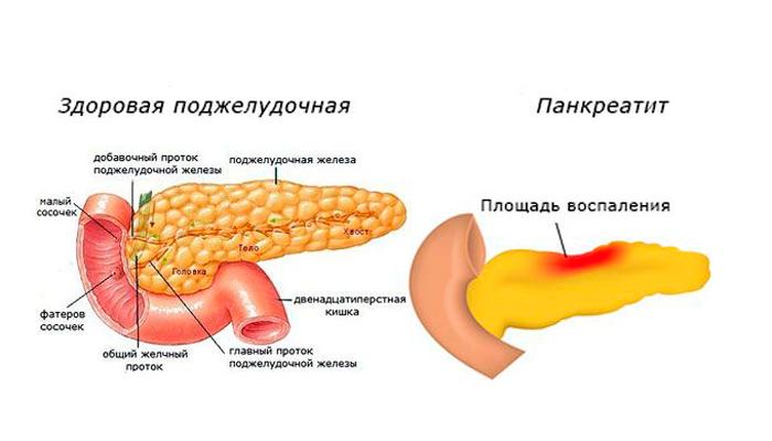 Появление панкреатита в следствии курения