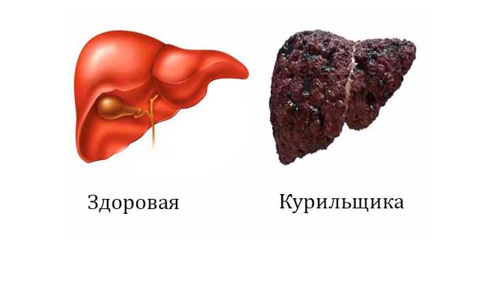 Сравнение печени здорового и курящего человека