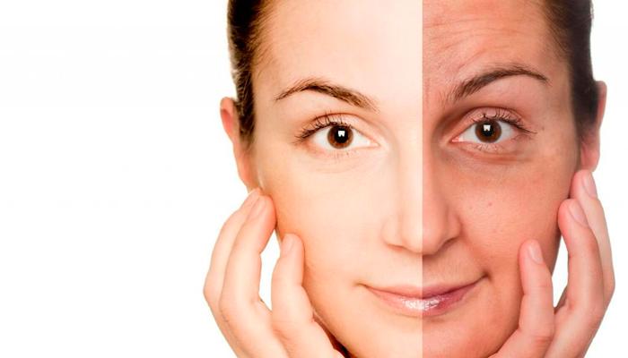 Изменение кожи в последствии курения