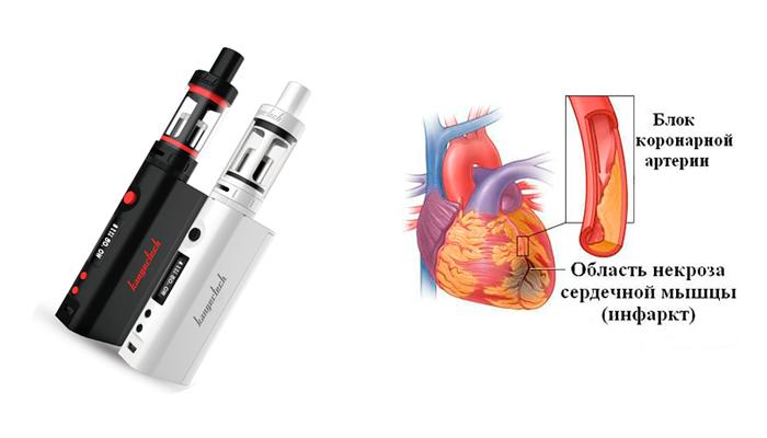 Ишемическая болезнь сердца в результате длительного курения электронной сигареты