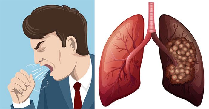 Процесс очищения легких курильщика