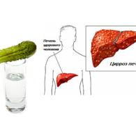 Алкогольный цирроз печени: признаки и симптомыопасного заболевания