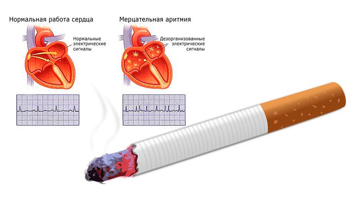 Аритмия в следствии регулярного курения
