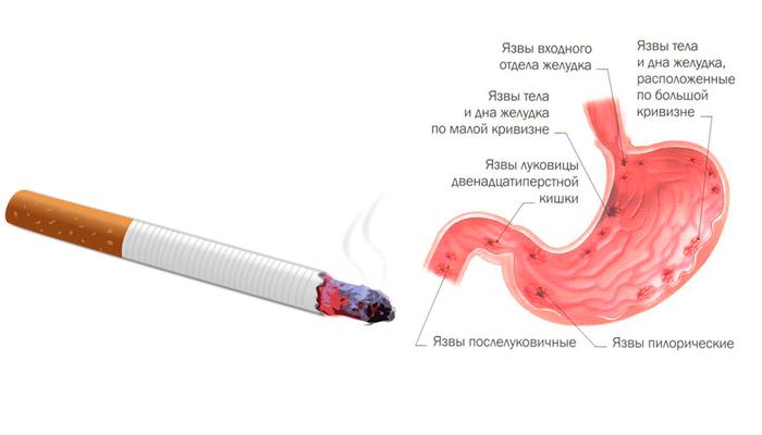 Язва желудка в следствии многолетнего табакокурения