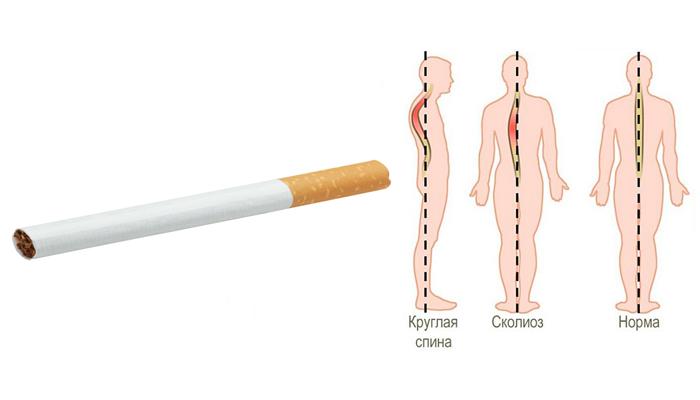 Появление сколиоза в следствии курения в подростковом возрасте