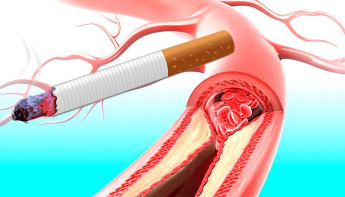 Образование тромба в сосудах из-за курения