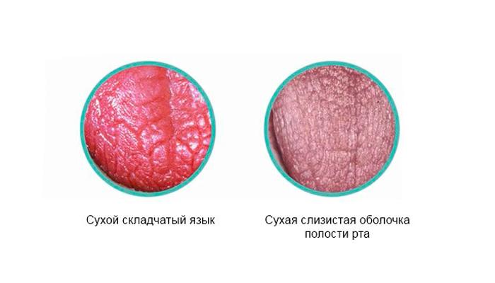Ксеростомия в следствии регулярного приема кодеина