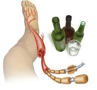 Алкогольная полинейропатия нижних конечностей: симптомы и лечение тяжелого заболевания
