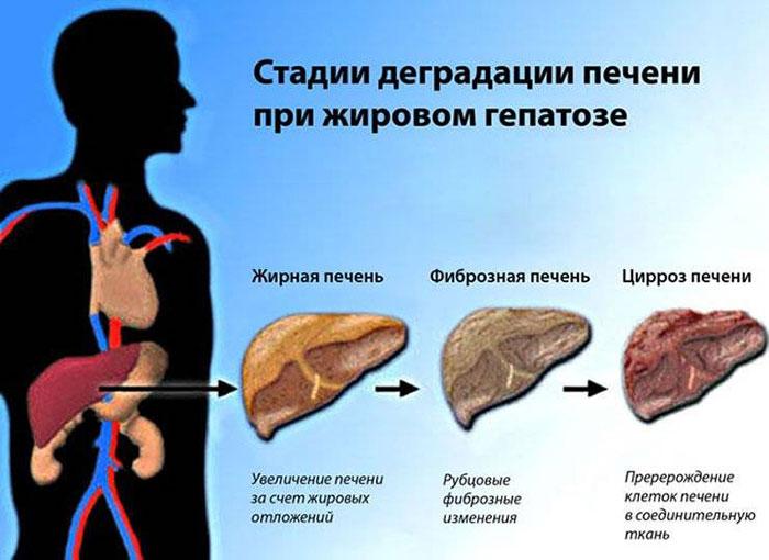 Этапы развития алкогольного жирового гепатоза