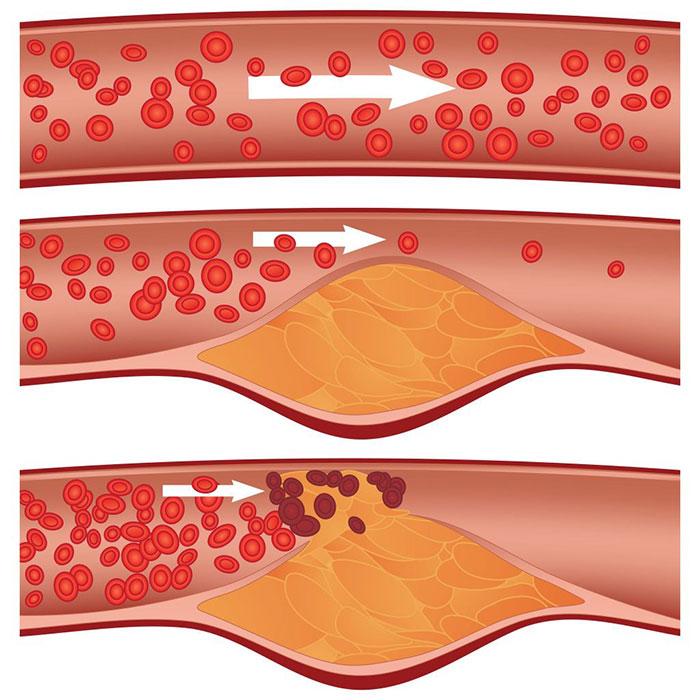 Влияние никотина на образование холестерина в сосудах