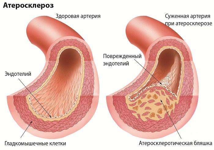 Курение является фактором риска сердечно-сосудистых заболеваний