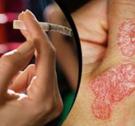 Курение и псориаз - есть ли взаимосвязь?