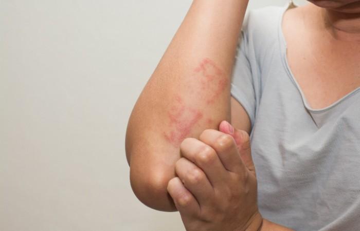 Реакция организма на превышение дозы солпадеина бывает разной
