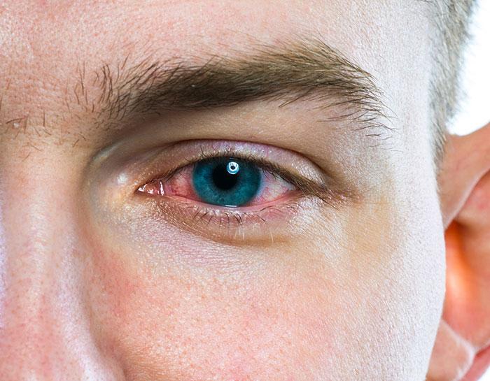 Покраснение глаз, расширение или сужение зрачков - одни из явных признаков употребления наркотиков